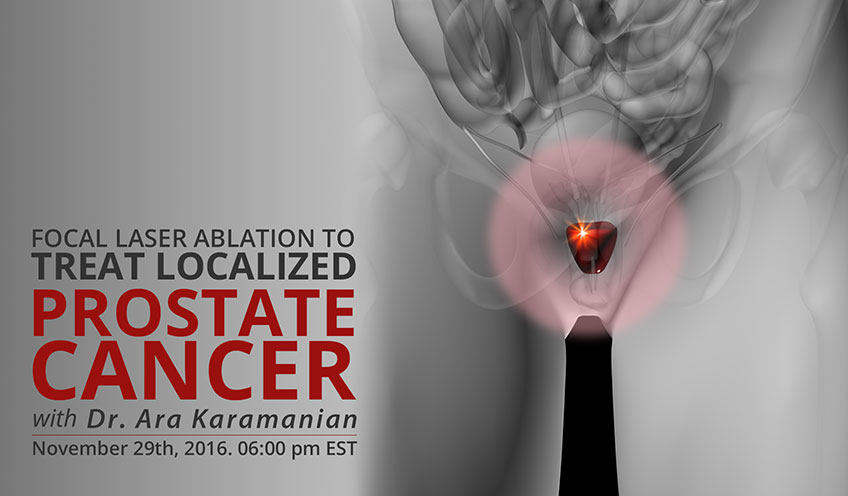 Focal Laser Ablation in Treatment of Localized Prostate Cancer – A Developing Therapeutic Option